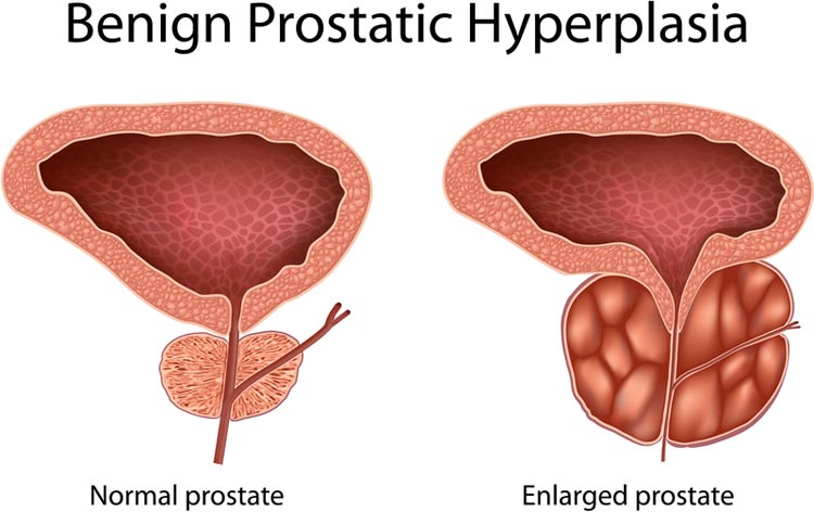 Sexual problems after prostate turp surgery