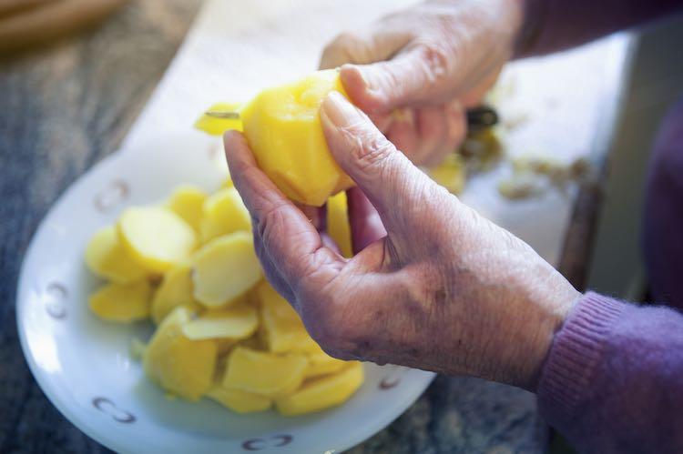 Arthritis and nutrition