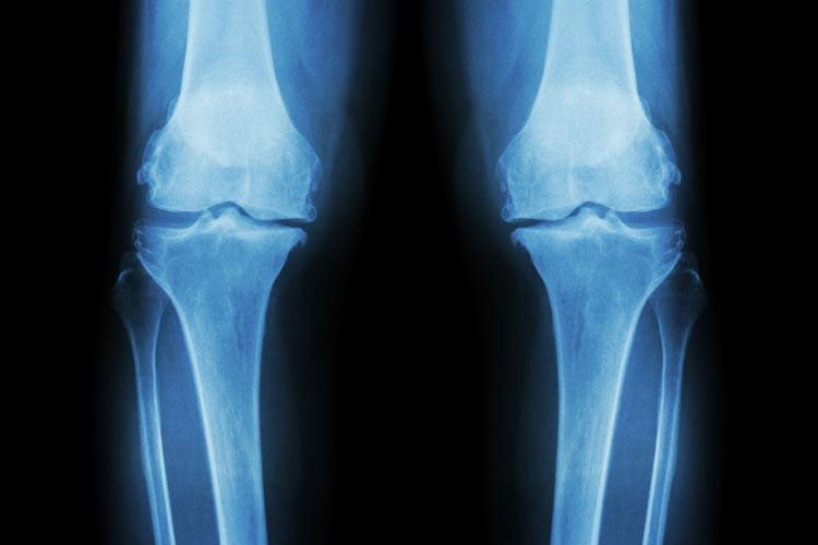 Animation: osteoarthritis