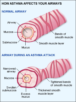 narrowing of airways during asthma attack