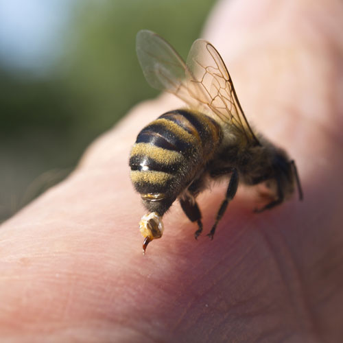bee stinging