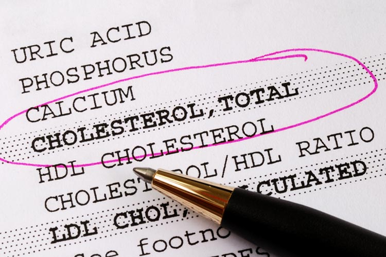 Cholesterol: what is your target?