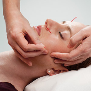 migraine sufferers get relief from acupuncture