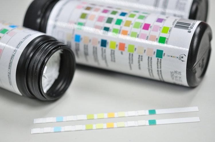 Diabetes and urine glucose monitoring