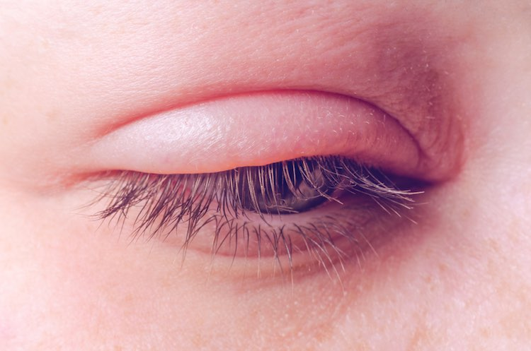 Eyelid and eyelash problems