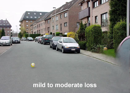 mild to moderate loss
