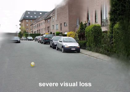 severe visual loss