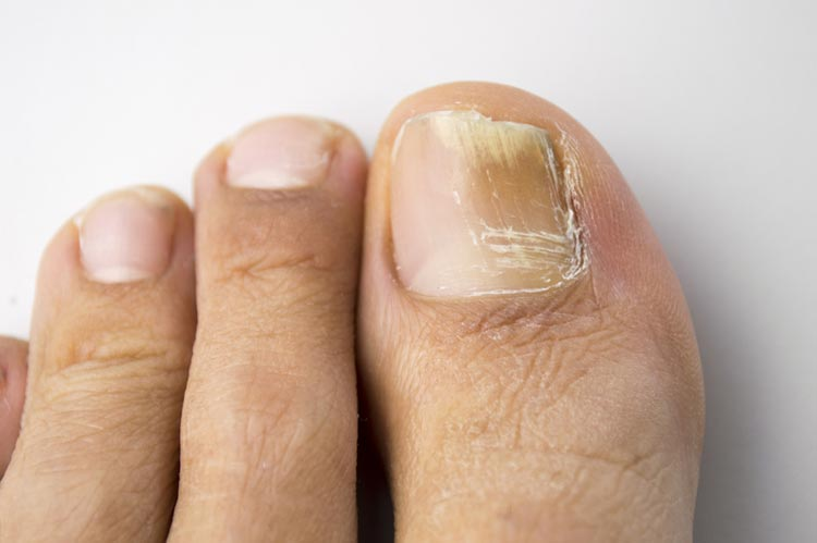 Fungal nail problems - myDr.com.au