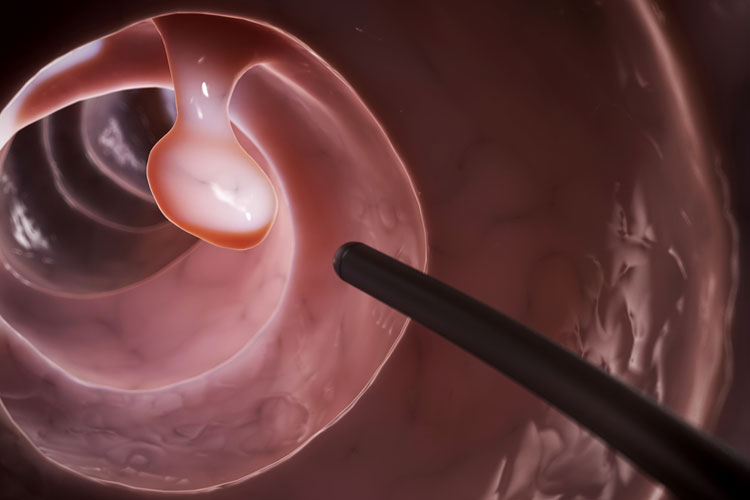Colonoscopy: examination of the colon