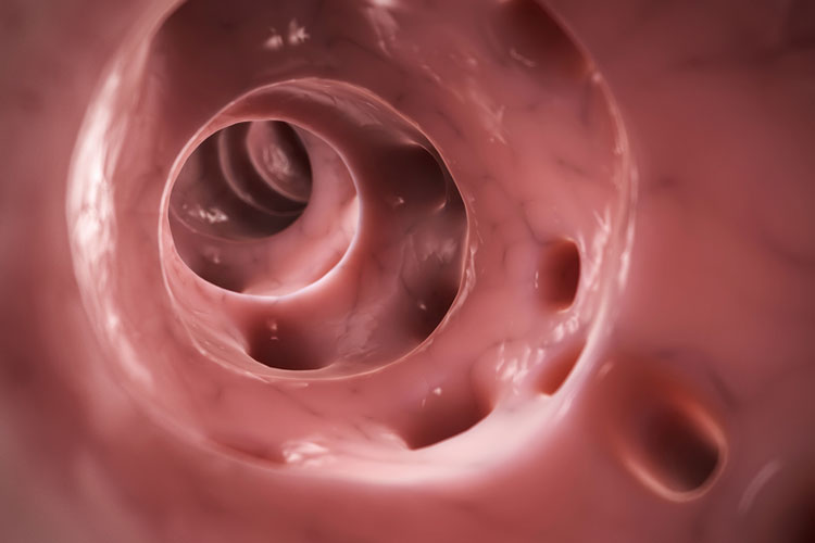 Diverticular disease and diverticulitis