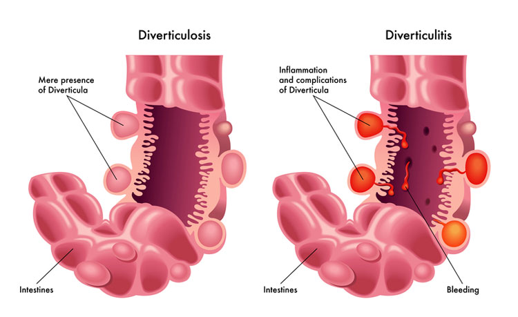 appearance of diverticulosis versus diverticulitis