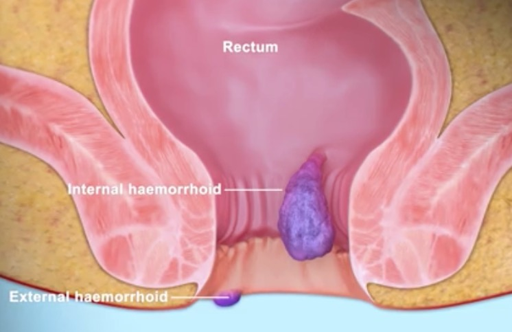 Video: Haemorrhoids - Dr Naseem