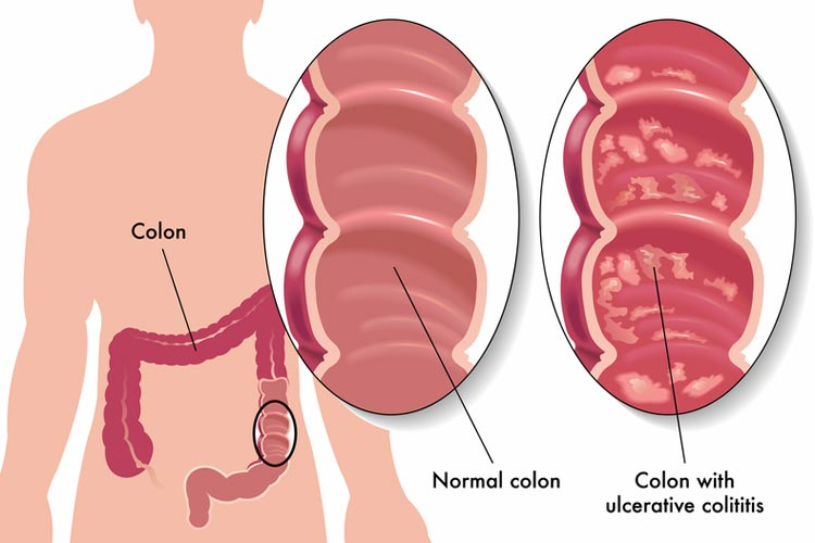 Can anal sex cause colitis