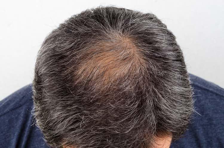 Hair loss self-care