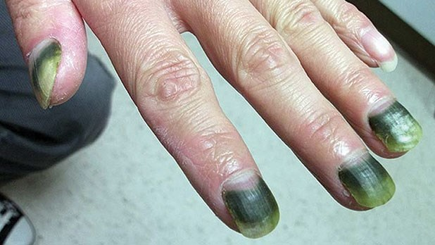 A Case Of Green Nail Syndrome