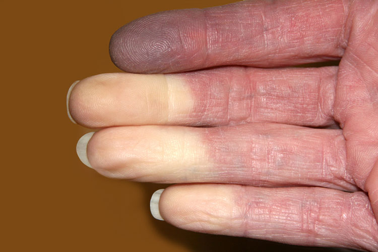 white fingers caused by Raynaud's phenomenon