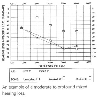 Audiogram of person with moderate to profound mixed hearing loss.