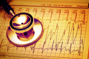 atrial fibrillation stopped by management of risk factors