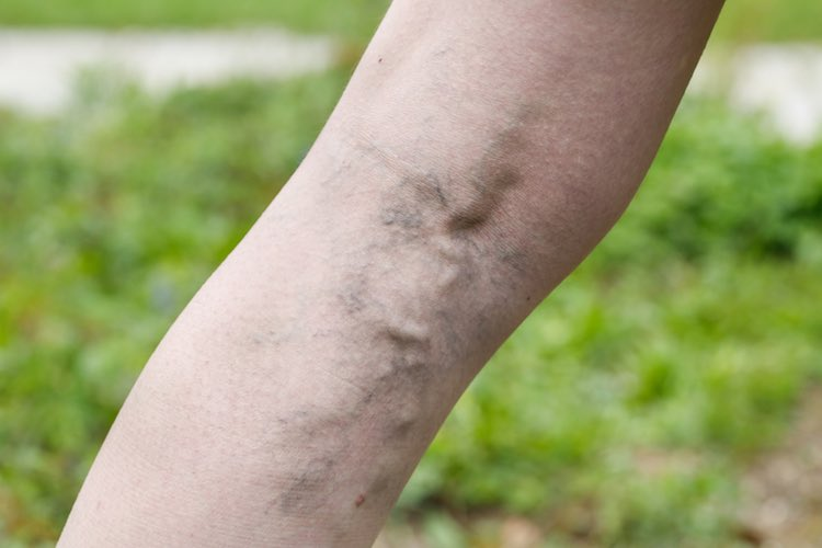 Varicose veins and support stockings