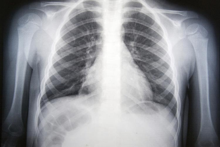 pneumonia: diagnosis and treatment - mydr.au, Human body
