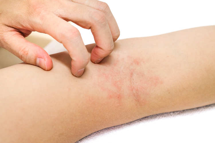 Eczema, or atopic dermatitis, is a type of chronic skin inflammation