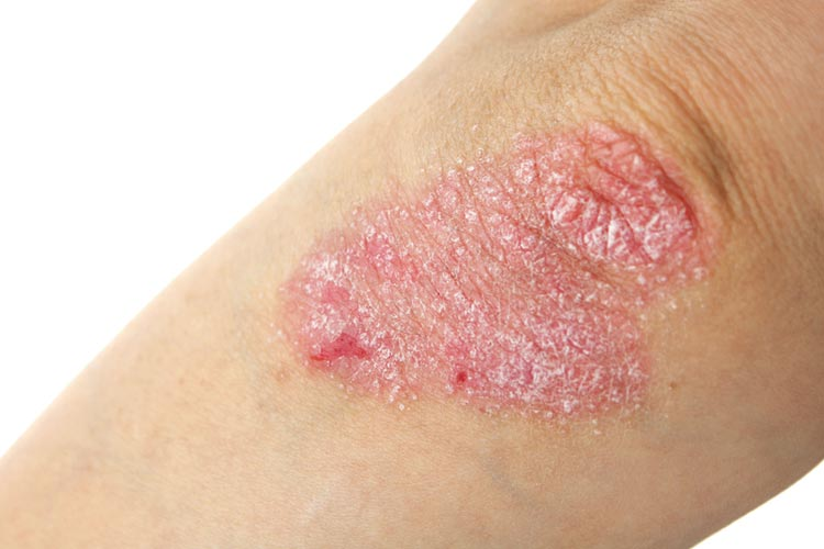 Psoriasis: what you need to know