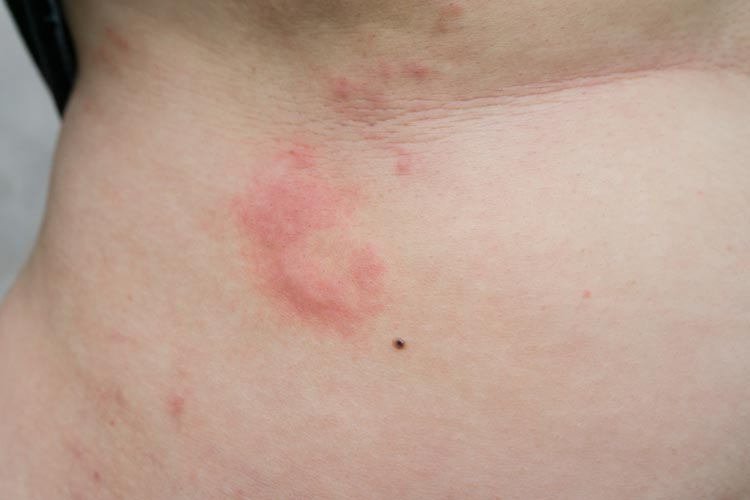 Urticaria (hives) treatment