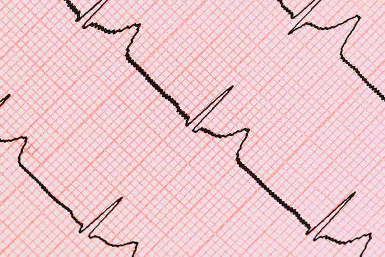 Electrocardiogram - ECG