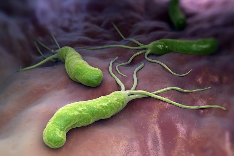 Helicobacter pylori test: simple test for stomach germ